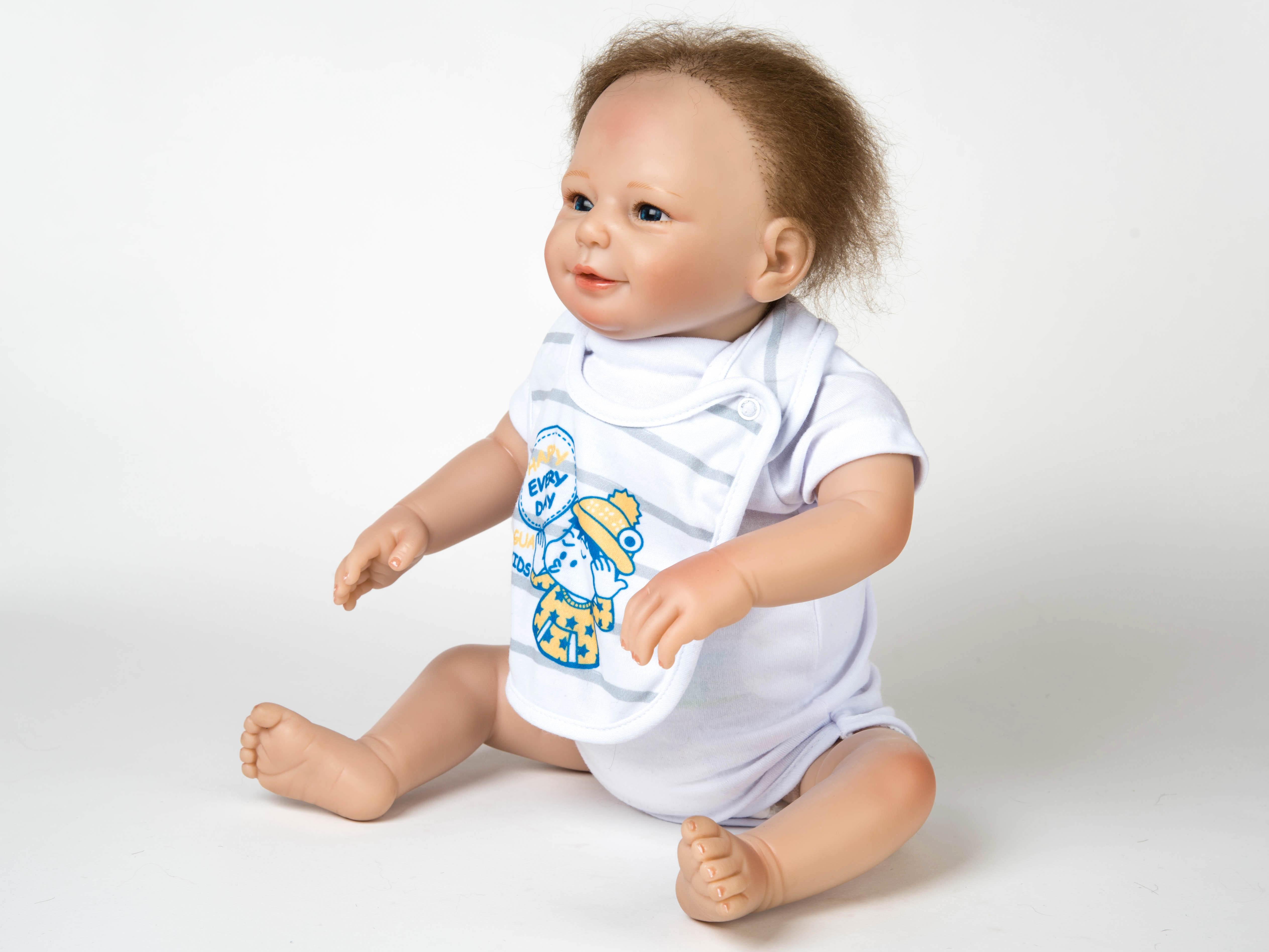 Дети с синдромом русалка фото